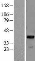 NBL1-07663 - ARG2 Lysate