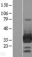NBL1-12478 - ARH Lysate