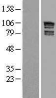 NBL1-07667 - ARHGAP17 Lysate