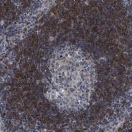 NBP1-84161 - ARHGAP24 / FILGAP
