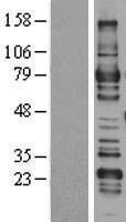 NBL1-07669 - ARHGAP25 Lysate