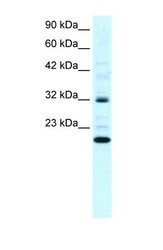 NBP1-59112 - ARHGDIG
