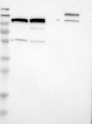 NBP1-83622 - ARID5B / MRF2