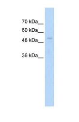 NBP1-55039 - ARIH1 / UBCH7BP