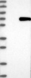 NBP1-88984 - ARIH1 / UBCH7BP