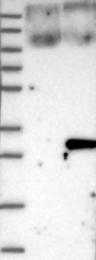 NBP1-88990 - ARL11 / ARLTS1