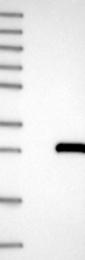 NBP1-88843 - ARL14 / ARF7