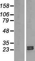 NBL1-07691 - ARL15 Lysate