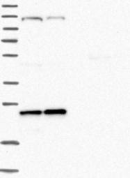 NBP1-88988 - ARL4C / ARL7