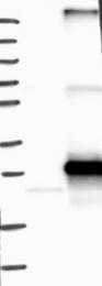 NBP1-81109 - ARL6IP6