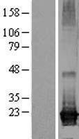 NBL1-07703 - ARL8A Lysate