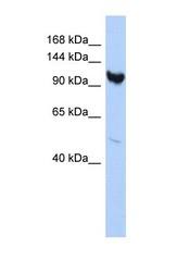 NBP1-70412 - ARMC3