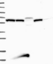 NBP1-85394 - ARMC3