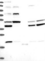 NBP1-84175 - ARMC4