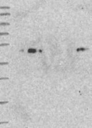 NBP1-81179 - ARMC6