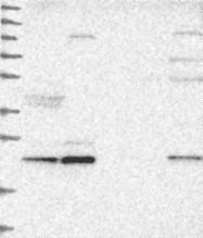 NBP1-82129 - ARMC7