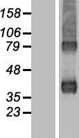 NBL1-07726 - ARP2-3-subunit-1B Lysate