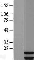 NBL1-07731 - ARPP19 Lysate