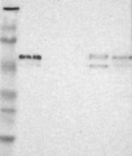NBP1-86135 - Arylsulfatase A