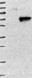 NBP1-86191 - Arylsulfatase F