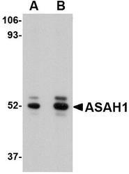 NBP1-76933 - Acid ceramidase