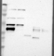 NBP1-89296 - Acid ceramidase