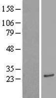 NBL1-07748 - ASAH3 Lysate