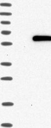 NBP1-88812 - ASB3