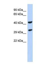 NBP1-58904 - ASB8
