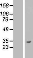 NBL1-07755 - ASB8 Lysate