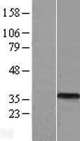 NBL1-07756 - ASB9 Lysate