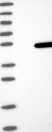 NBP1-88855 - ASCC1