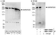 NBP1-79037 - ASCC3L1
