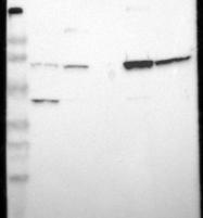 NBP1-86154 - ASMTL