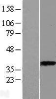 NBL1-07772 - ASPA Lysate