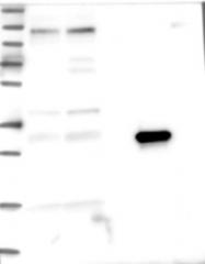 NBP1-85832 - ASPDH