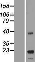 NBL1-12619 - ASPDH Lysate