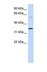 NBP1-56511 - ASPRV1 / SASP