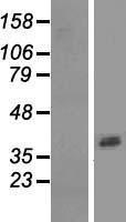 NBL1-07775 - ASPRV1 Lysate