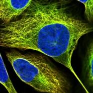NBP1-89133 - L-asparaginase