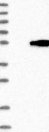 NBP1-88867 - ASS1