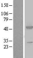 NBL1-07779 - ASS1 Lysate