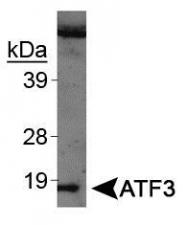 NBP1-02935 - ATF3