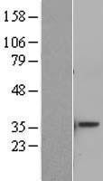 NBL1-07792 - ATF5 Lysate