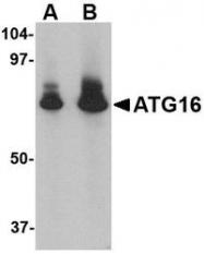 NBP1-76862 - APG16L / ATG16L1
