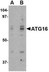 NBP1-76863 - APG16L / ATG16L1