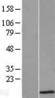 NBL1-07805 - ATOX1 Lysate