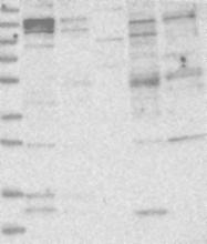 NBP1-88900 - ATP11B