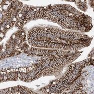 NBP1-88902 - ATP11C