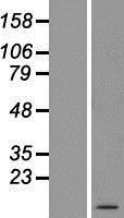 NBL1-07821 - ATP5E Lysate
